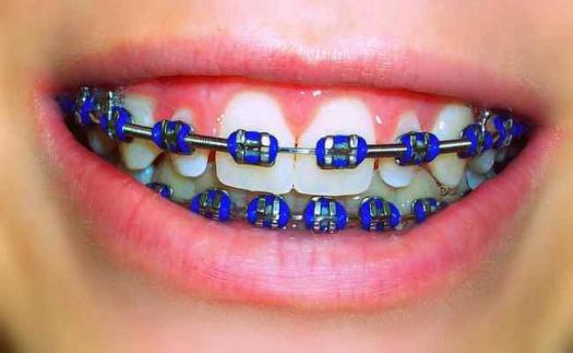 The Orthodontic Clinic P C Colored Braces
